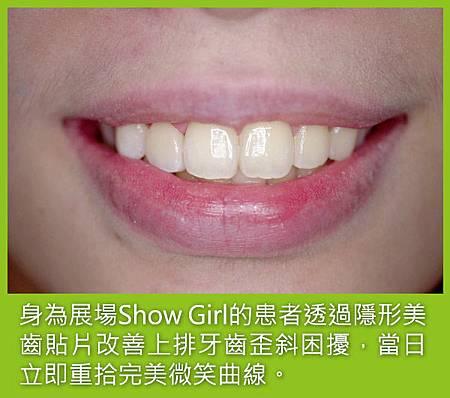 冠雅牙醫_美齒貼片Showgirl_重拾完美微笑曲線