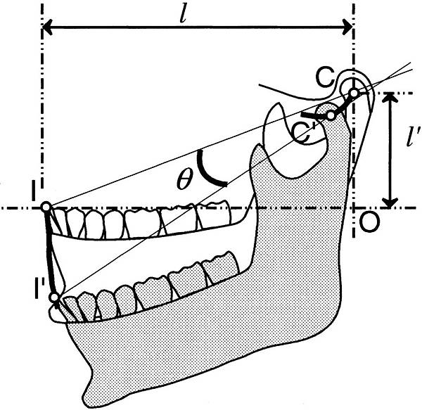 mandible rotation