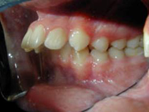 dental protrusion