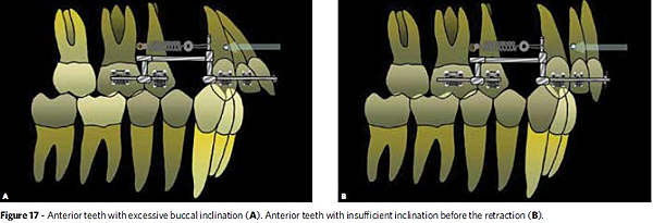 fig 3 A dental protrusion B bone protrusion