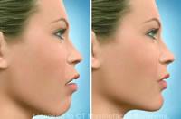 fig 6 open bite lateral view profile improve