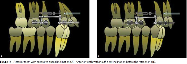 dental protrusion or bone protrusion