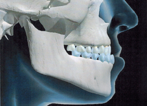 fig 1 Malocclusion-—-Class-III