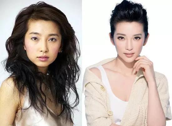 圖二李冰冰before and after ortho