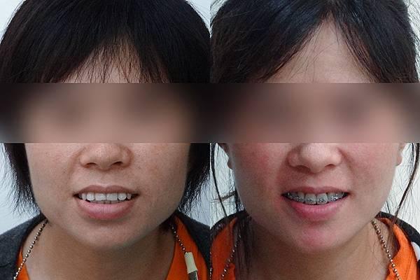 圖三 before and after front view