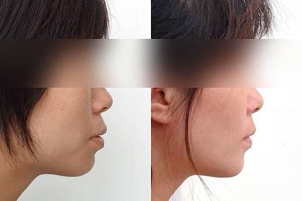 圖四before and after side view