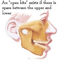 fig 2. oral_surgeon_open-bite-1
