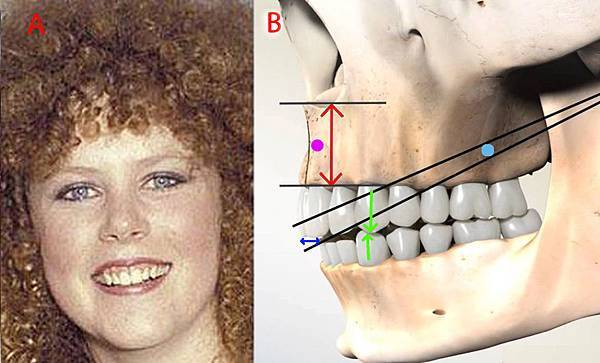 gingival exposed while smiling explainedˍ2