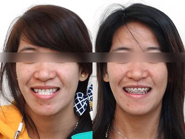ClassIII facial profile change before and after