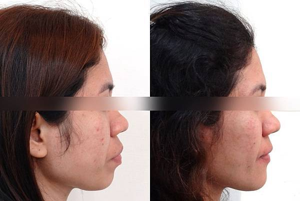 before and after lateral face