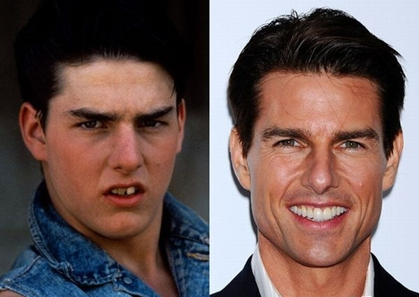 圖二Tom Cruise before and after braces