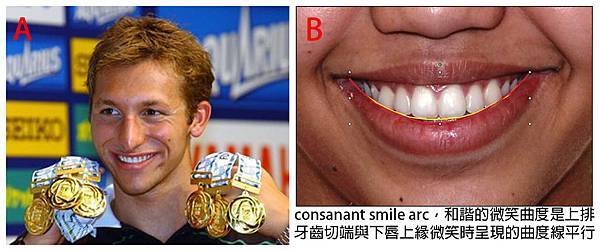 圖四Ian thorpe smile arc