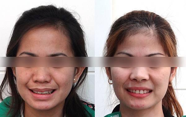 愛超before and after frontal smile photos