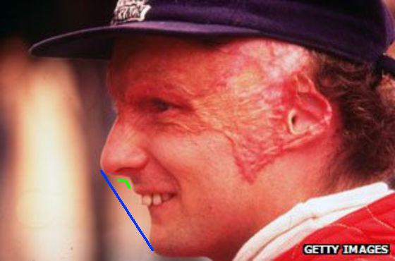 圖二Niki Lauda lateral 2