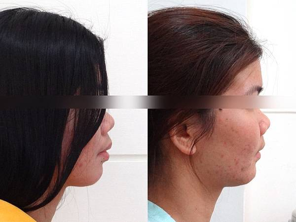 圖五海德琳lateral profile before and after-upload