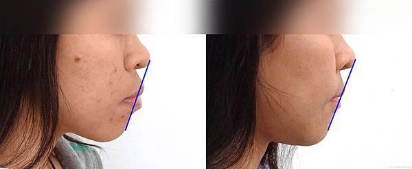 艾凡lateral profile esthetic line
