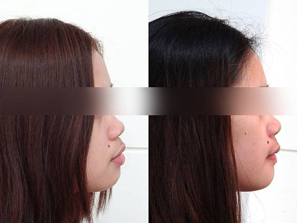 圖三潔娜before and after lateral profile