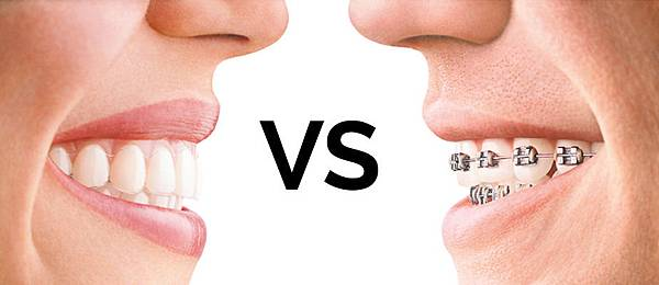 圖一LifeCare-Dental-NEWS-invisalign.vs_.braces