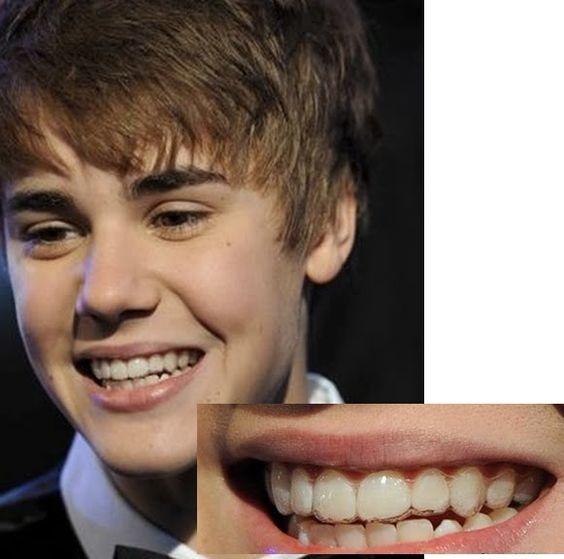 圖二Justin Bieber invisalign braces