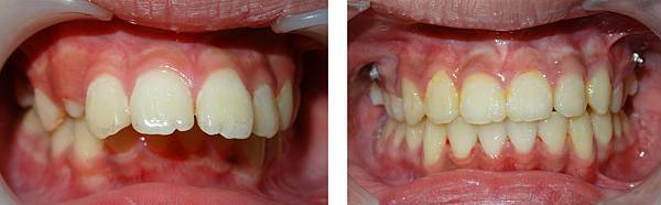 陳建洲before and after teeth frontal view