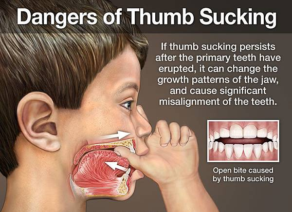 dangers-of-thumb-sucking from 2013 Dear Doctor. Inc