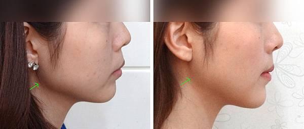 圖六吳佩琪blog Before and after lat profile copy