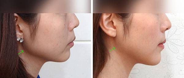 圖六吳佩琪blog Before and after lat profile copy