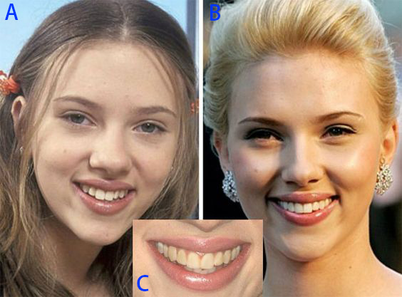 圖二Scarlett Johansson teeth change with ABC