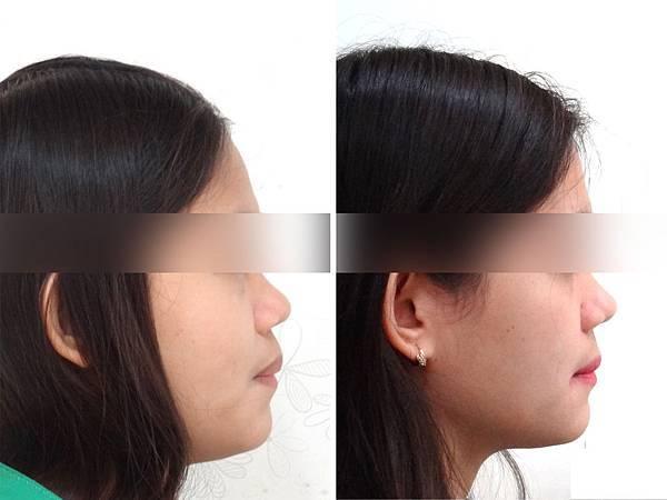 圖六班卡before and after lateral profile change