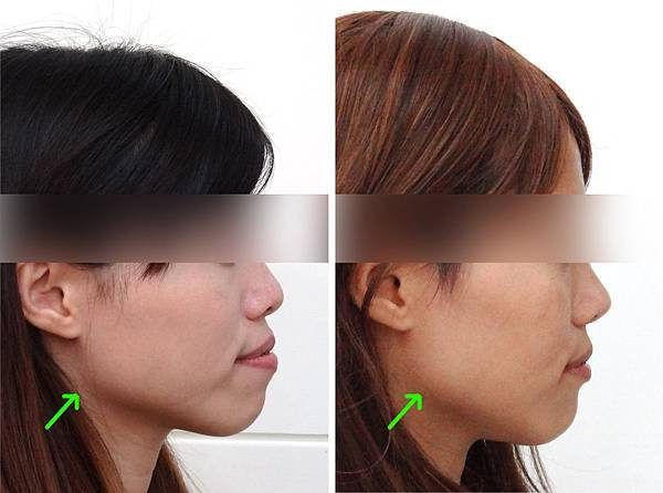 圖九翁淑真lateral profile before and during braces