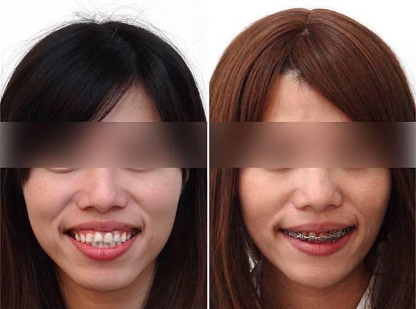 圖三翁淑貞矯正前與矯正中正面微笑比較