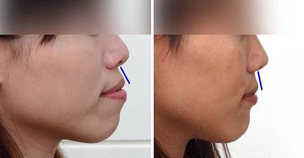 圖四翁淑貞矯正前與矯正中側面輪廓上唇內收