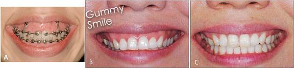 圖十gummy smile correction with anterior screws