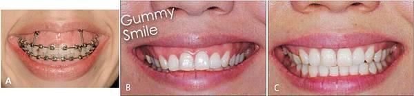 圖十gummy smile correction with anterior screws