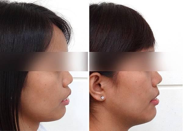 圖五艾瑪矯正前與矯正後側面輪廓照