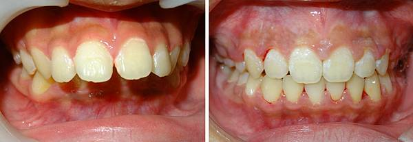 徐瑋均before and after frontal occlusal view