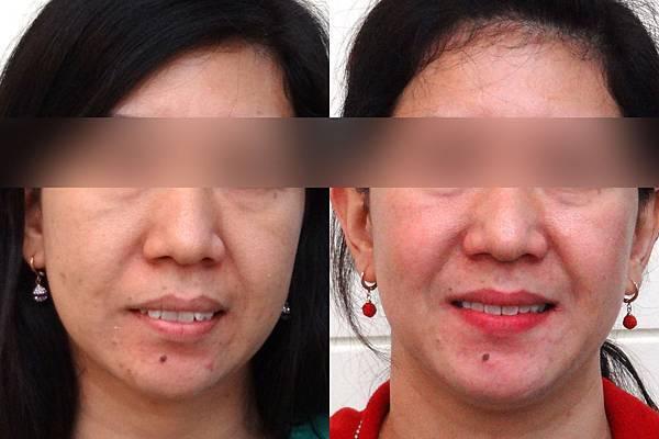 圖四尼絲before and after frontal smile