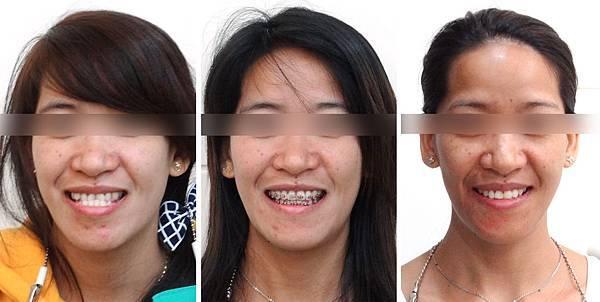 賈娜特矯正前與矯正後正面微笑照片