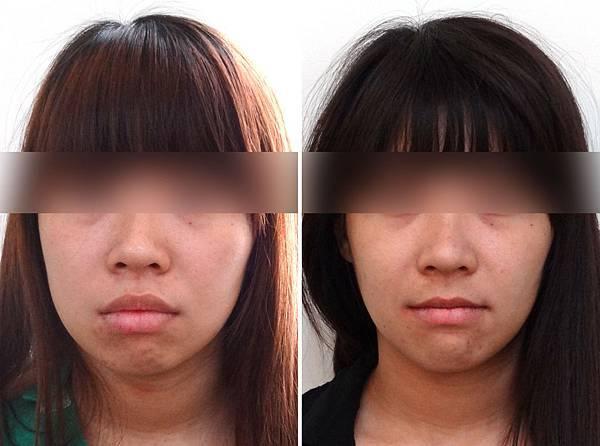 陳萱容矯正前與矯正中正面輪廓遮眼