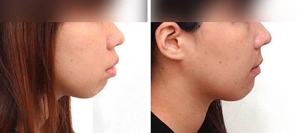 陳萱容側面輪廓下臉部