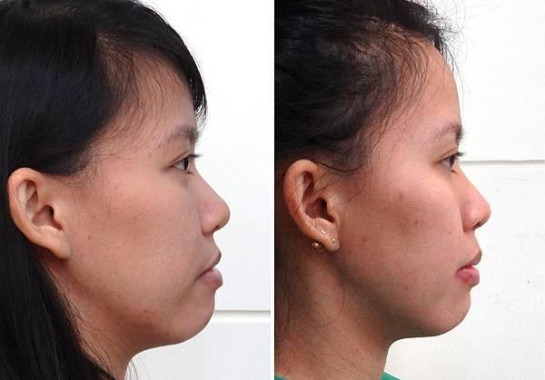 瑞雅矯正前與矯正中側面輪廓對比