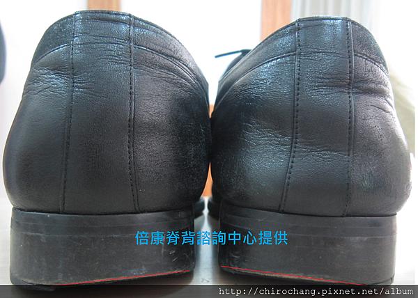 鞋面內側磨損
