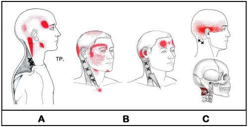 頸因性頭痛