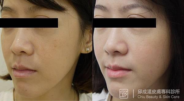 雷射除斑,邱成湦,文山區皮膚科