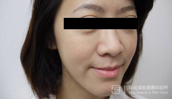 雷射除斑,邱成湦醫師,文山區皮膚科