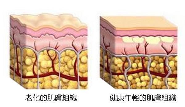 膠原蛋白流失老化肌膚