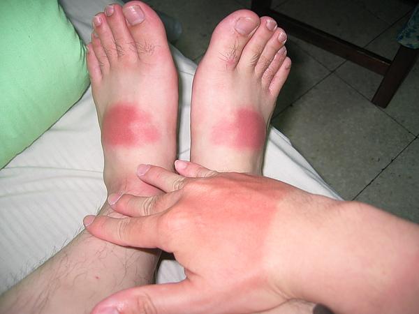 曬傷的手腳.JPG