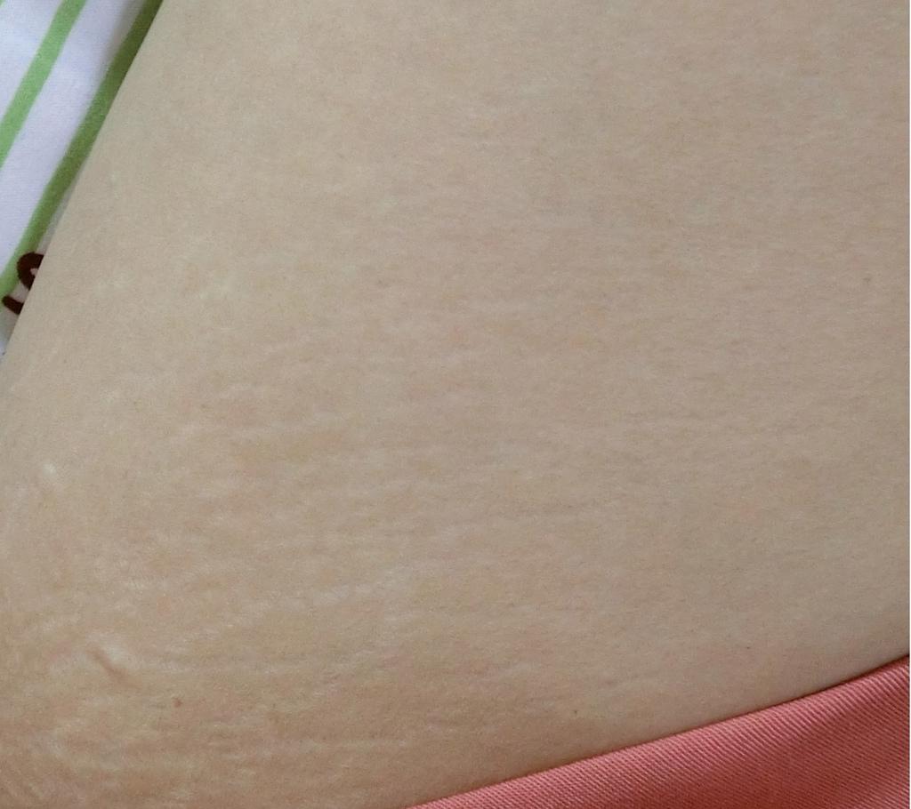 第三代最新海芙音波拉提高雄熱河診所大腿內側後.jpg