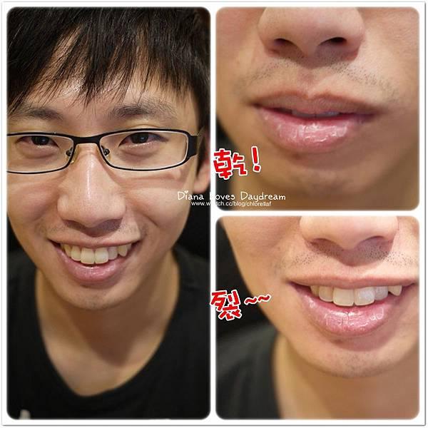 lip8.jpg
