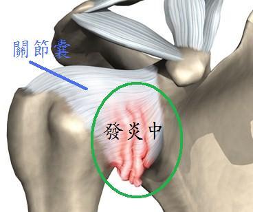 shoulder adhesion capsulitis.jpg